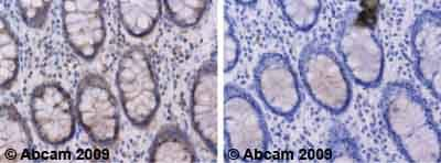 Immunohistochemistry (Formalin/PFA-fixed paraffin-embedded sections) - NFATC4 antibody (ab62613)