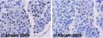Immunohistochemistry (Formalin/PFA-fixed paraffin-embedded sections)-FOXO4 antibody(ab63254)