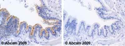 Immunohistochemistry (Formalin/PFA-fixed paraffin-embedded sections) - Anti-Casein Kinase 1 alpha antibody (ab63373)