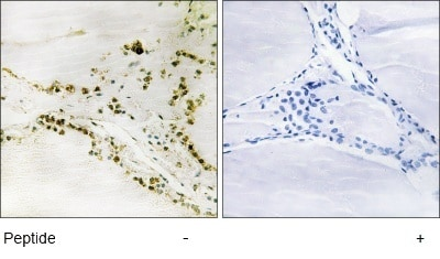 Immunohistochemistry (Formalin/PFA-fixed paraffin-embedded sections) - Pin1 antibody (ab63623)