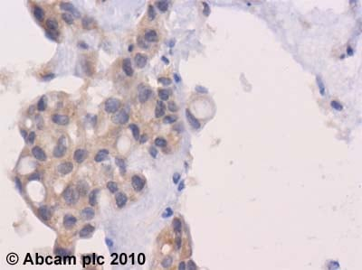 Immunohistochemistry (Formalin/PFA-fixed paraffin-embedded sections)-Wnt1 antibody(ab63934)
