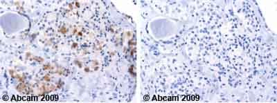 Immunohistochemistry (Formalin/PFA-fixed paraffin-embedded sections)-RBP4 antibody(ab64194)