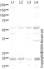 Western blot - RHOC antibody (ab64659)