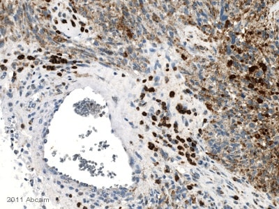 Immunohistochemistry (Formalin/PFA-fixed paraffin-embedded sections) - Anti-CXCR3 antibody [2Ar1] (ab64714)