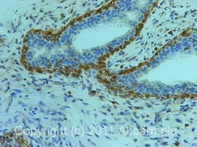Immunohistochemistry (Formalin/PFA-fixed paraffin-embedded sections)-ACRBP antibody(ab64809)
