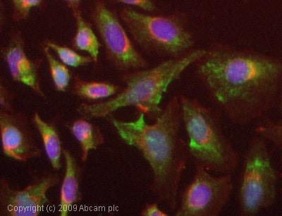 Immunocytochemistry/ Immunofluorescence-TCTP antibody(ab65015)