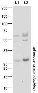 Western blot - Anti-EPO antibody (ab65394)