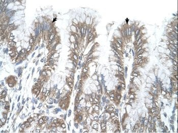 Immunohistochemistry (Formalin/PFA-fixed paraffin-embedded sections) - Anti-RSRC2 antibody (ab65534)