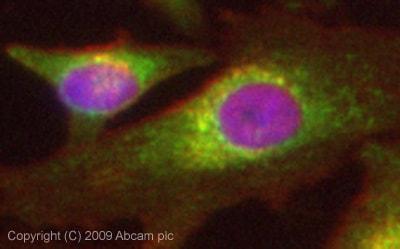 Immunocytochemistry/ Immunofluorescence - Vitamin D Binding Protein antibody (ab65636)