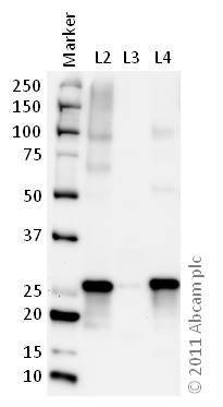 Western blot - Anti-SNAP25 antibody (ab66066)