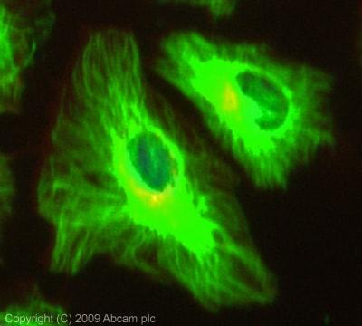 Immunocytochemistry/ Immunofluorescence - MAPRE1 antibody (ab66105)