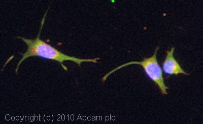 Immunocytochemistry/ Immunofluorescence-LRP6 antibody(ab66156)