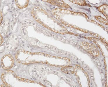 Immunohistochemistry (Formalin/PFA-fixed paraffin-embedded sections)-Cathepsin K antibody(ab66237)