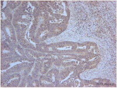 Immunohistochemistry (Formalin/PFA-fixed paraffin-embedded sections) - Anti-PSMD11 antibody (ab66346)