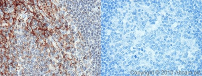 Immunohistochemistry (Formalin/PFA-fixed paraffin-embedded sections) - CD82 antibody (ab66400)