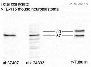 - Anti-Tropomodulin 2 antibody (ab67407)