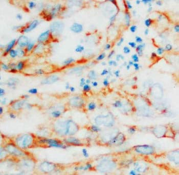 Immunohistochemistry (Formalin/PFA-fixed paraffin-embedded sections) - Hsp60 antibody (ab68416)