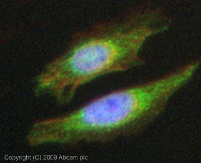 Immunocytochemistry/ Immunofluorescence - ACVRL1 antibody (ab68703)