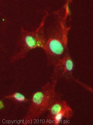 Immunocytochemistry/ Immunofluorescence-KMT3A / HYPB / HIF-1 antibody(ab69836)
