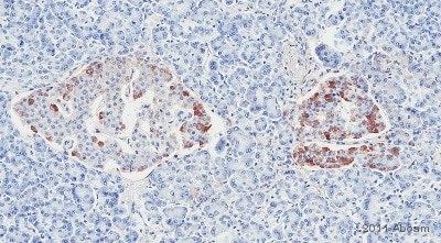 Immunohistochemistry (Formalin/PFA-fixed paraffin-embedded sections) - Anti-Collagen V antibody (ab7046)