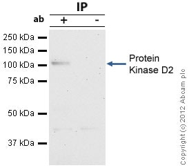 Immunoprecipitation - Anti-Protein Kinase D2 antibody (ab7281)