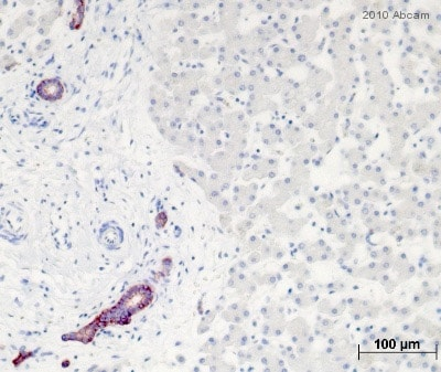 Immunohistochemistry (Formalin/PFA-fixed paraffin-embedded sections) - EpCAM antibody [Ber-EP4] (ab7504)