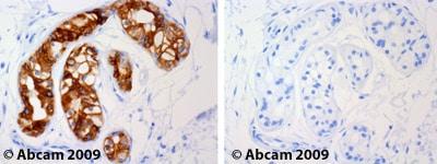 Immunohistochemistry (Formalin/PFA-fixed paraffin-embedded sections) - Anti-Cytokeratin 19 antibody [A53-B/A2] (ab7754)