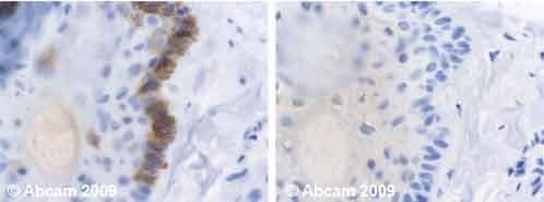 Immunohistochemistry (Formalin/PFA-fixed paraffin-embedded sections) - Cytokeratin 19 antibody [BA-17] (ab7755)