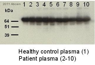Western blot - Human Serum Albumin antibody [AL-01] (ab7793)