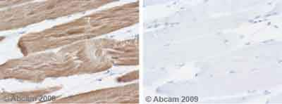 Immunohistochemistry (Formalin/PFA-fixed paraffin-embedded sections) - muscle Actin antibody [HHF35] (ab7813)