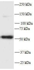 Western blot - PFKFB2 antibody (ab70175)