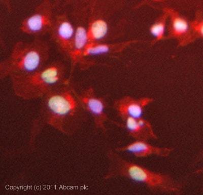 Immunocytochemistry/ Immunofluorescence-EDD antibody(ab70311)
