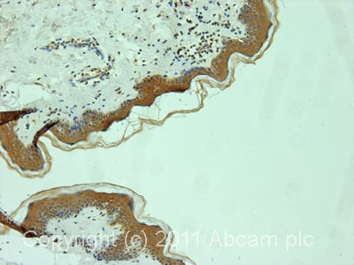 Immunohistochemistry (Formalin/PFA-fixed paraffin-embedded sections)-53BP2/ASPP2 antibody(ab70548)