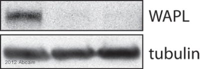 Western blot - Anti-WAPL antibody (ab70741)