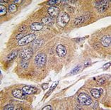 Immunohistochemistry (Formalin/PFA-fixed paraffin-embedded sections) - S6K antibody (ab71013)