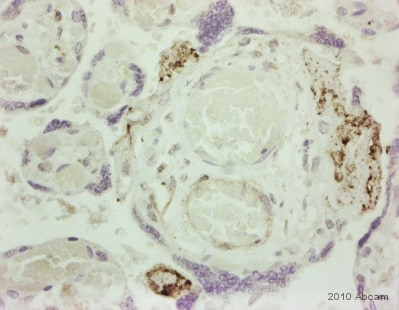 Immunohistochemistry (Formalin/PFA-fixed paraffin-embedded sections) - Anti-C9 antibody (ab71330)