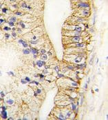 Immunohistochemistry (Formalin/PFA-fixed paraffin-embedded sections) - Cadherin 7 antibody - N-terminal (ab71412)