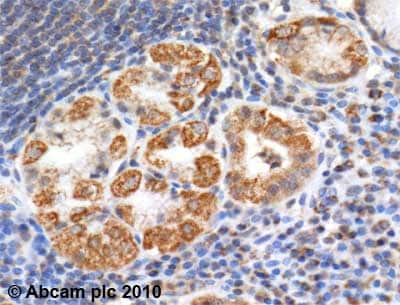 Immunohistochemistry (Formalin/PFA-fixed paraffin-embedded sections)-Aconitase 2 antibody(ab71440)