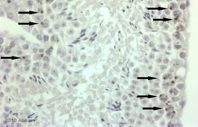 Immunohistochemistry (Formalin/PFA-fixed paraffin-embedded sections) - BRD1 antibody (ab71877)