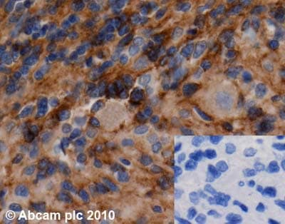Immunohistochemistry (Formalin/PFA-fixed paraffin-embedded sections) - PHLPP antibody (ab71972)