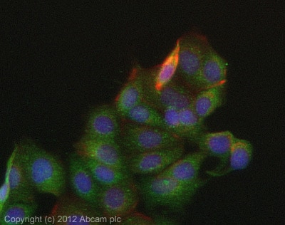 Immunocytochemistry/ Immunofluorescence - Anti-NAGLU antibody (ab72178)