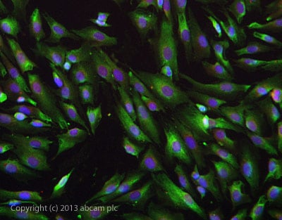 Immunocytochemistry/ Immunofluorescence - Anti-68kDa Neurofilament antibody (ab72997)