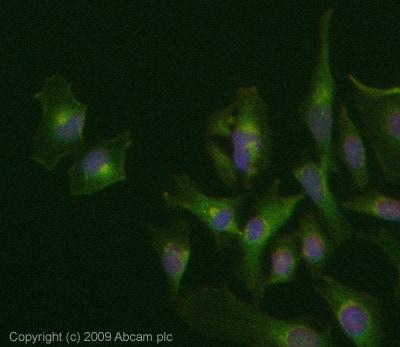 Immunocytochemistry/ Immunofluorescence - Rab34 antibody (ab73383)
