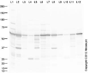 Western blot - Anti-ATP6V1B2 antibody (ab73404)