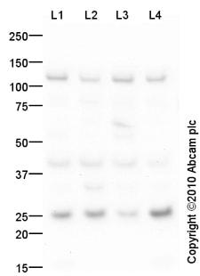 Western blot - RSPO2 antibody (ab73761)