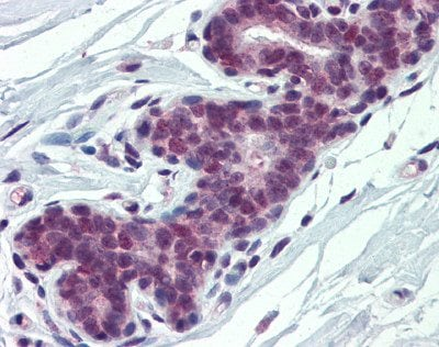Immunohistochemistry (Formalin/PFA-fixed paraffin-embedded sections) - Anti-PCBP1 antibody (ab74793)