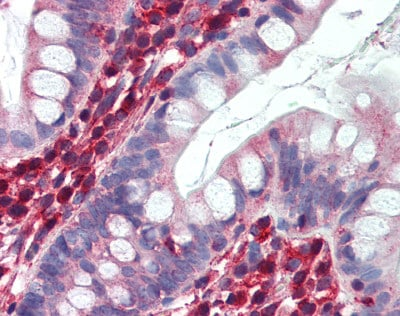 Immunohistochemistry (Formalin/PFA-fixed paraffin-embedded sections) - Anti-lactate dehydrogenase B antibody (ab75167)