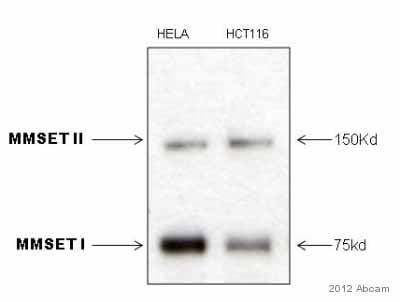 Western blot - Anti-WHSC1/NSD2 antibody [29D1] (ab75359)