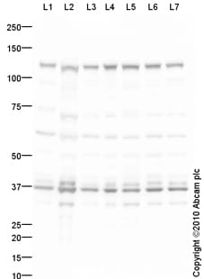 Western blot - Anti-DDB1 with internal loading control antibody (ab75393)