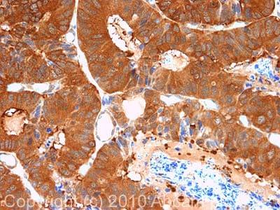 Immunohistochemistry (Formalin/PFA-fixed paraffin-embedded sections) - PDCD5 antibody (ab75430)